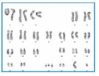 marqueur trisomie 21